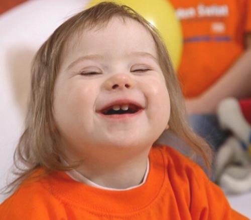 Imagen de una niña con síndrome de Down